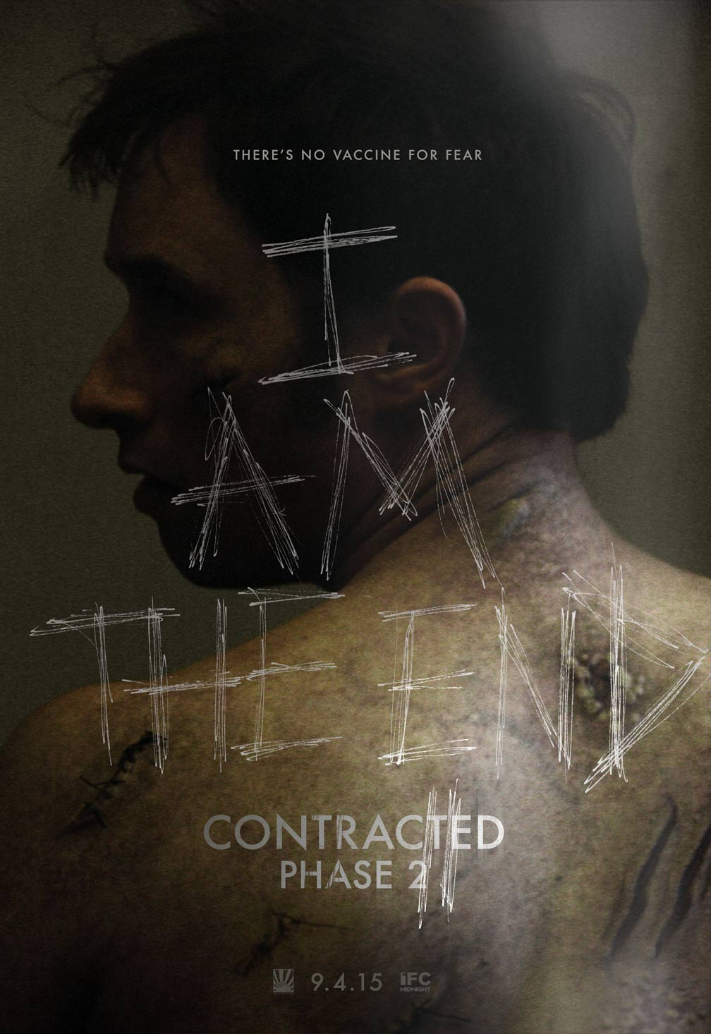 Contracted: Phase II Poster #1